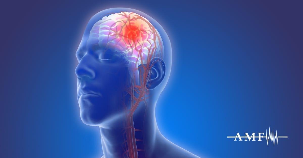 Low CSF Pressure Headache